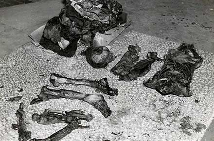 Remains of torso murderer victim, 1938